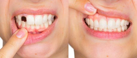 Sztuczne zęby tymczasowe